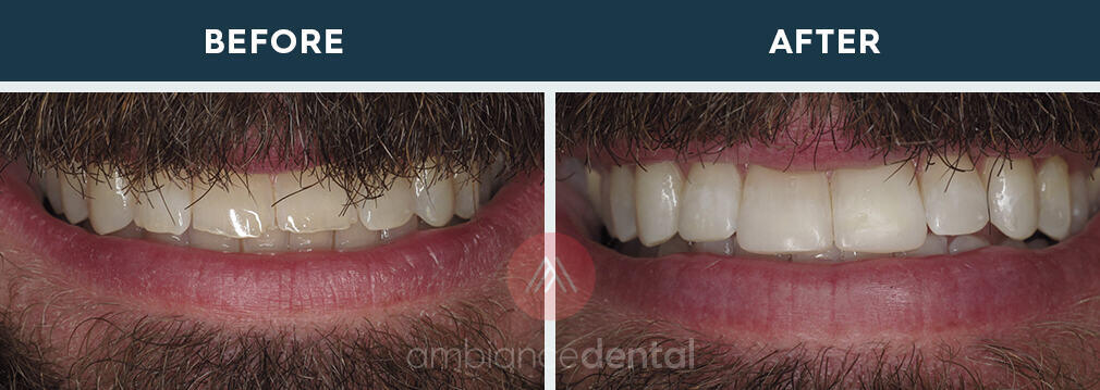 ambiance-dental-before-after-02