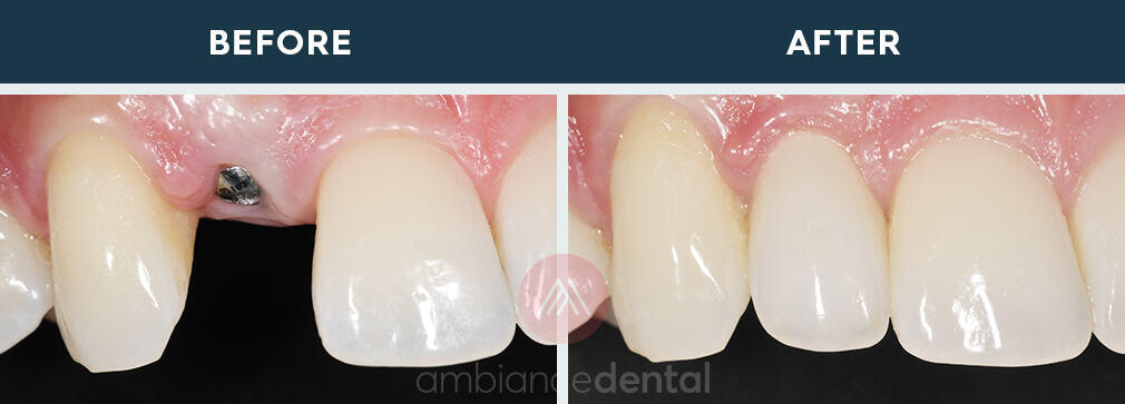 ambiance-dental-before-after-03