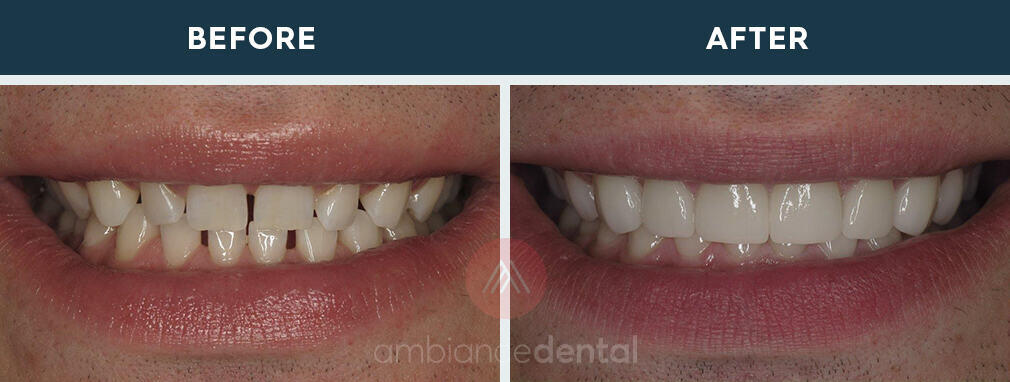 ambiance-dental-before-after-04