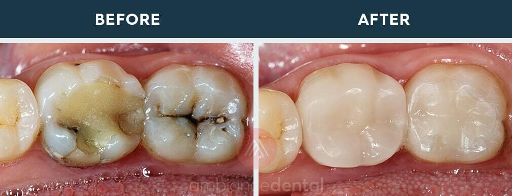 ambiance-dental-before-after-06