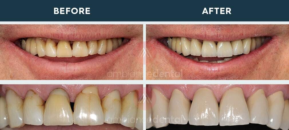 ambiance-dental-before-after-08
