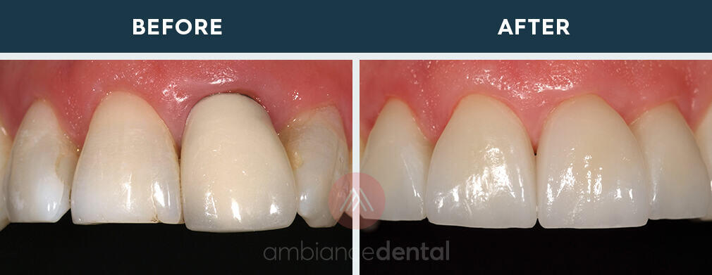 ambiance-dental-before-after-09