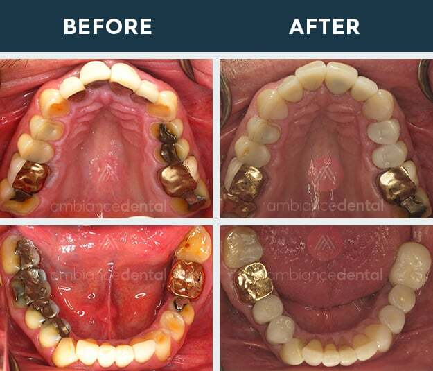 ambiance-dental-before-after-11