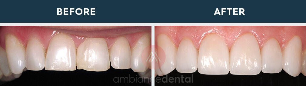 ambiance-dental-before-after-12