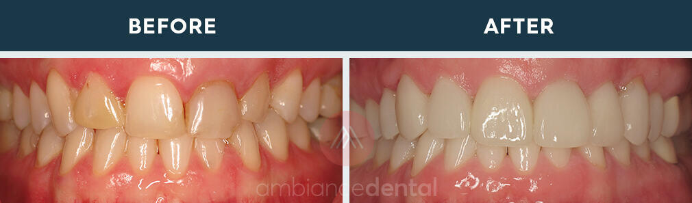 ambiance-dental-before-after-13