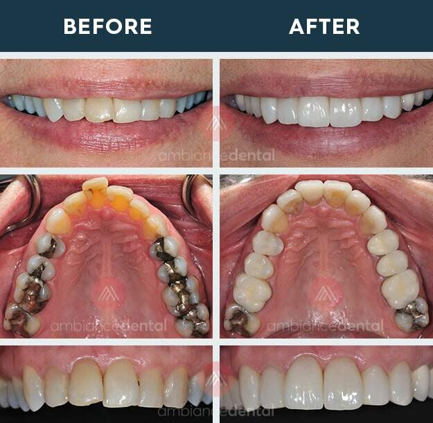ambiance-dental-before-after-15