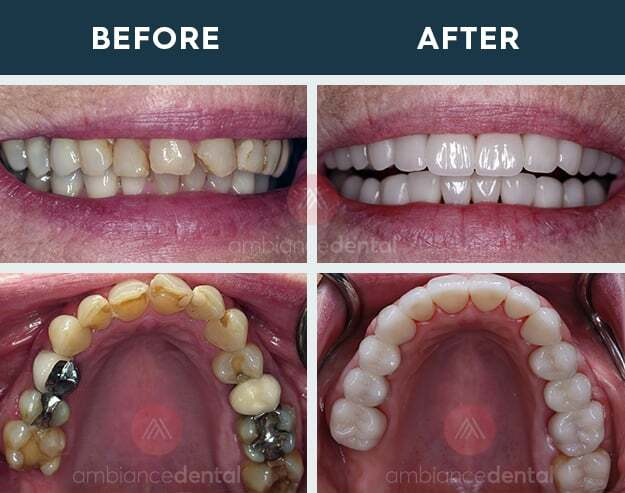 ambiance-dental-before-after-16