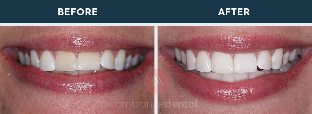 ambiance-dental-before-after-17