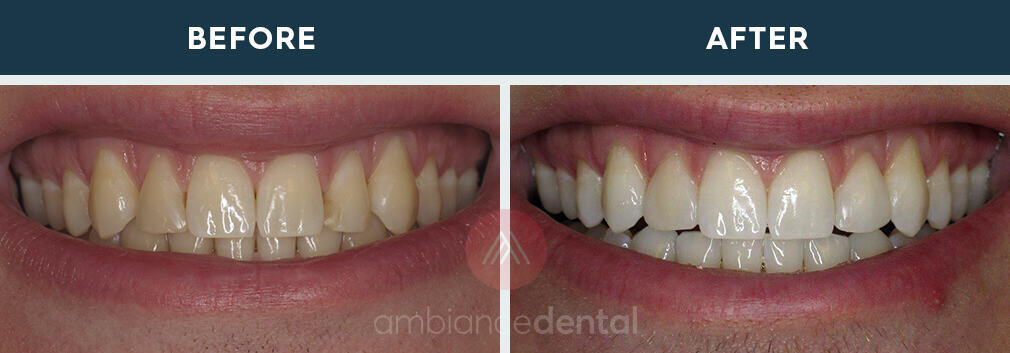 ambiance-dental-before-after-18