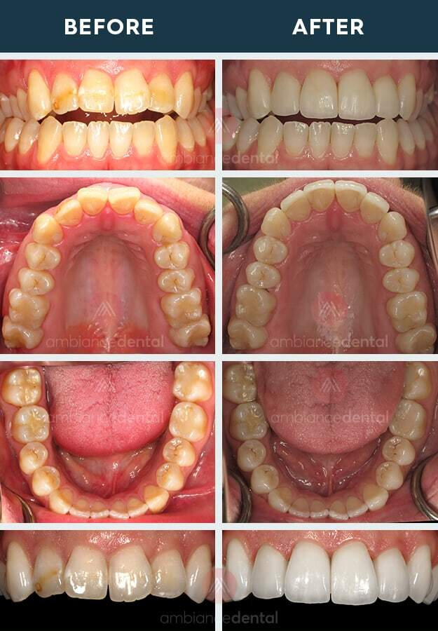 ambiance-dental-before-after-19