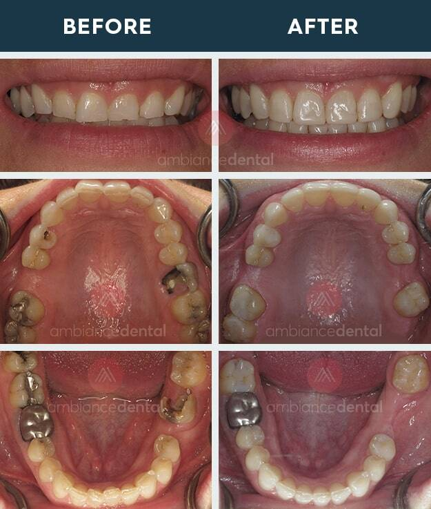 ambiance-dental-before-after-20