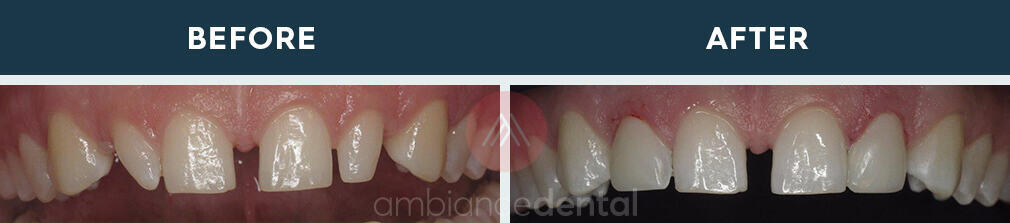 ambiance-dental-before-after-24