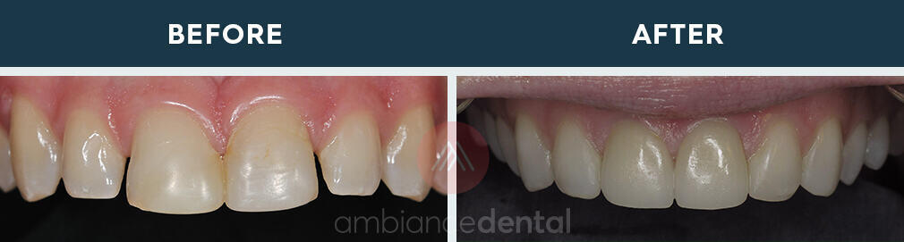 ambiance-dental-before-after-27