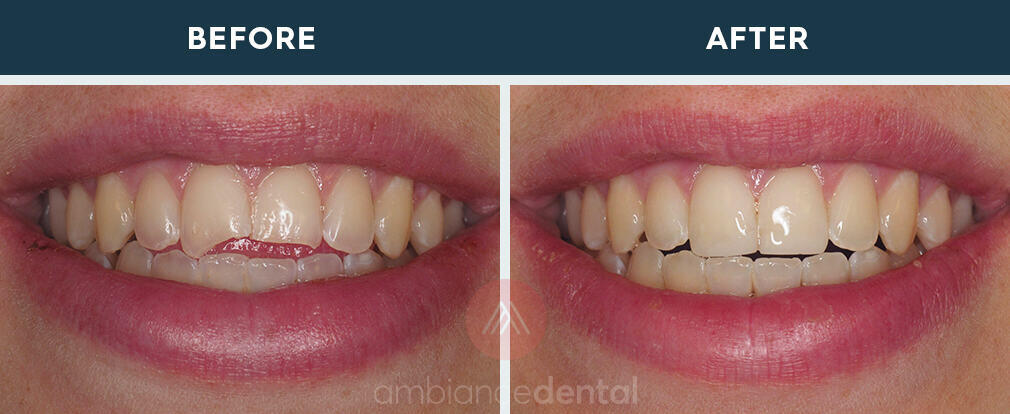 ambiance-dental-before-after-28