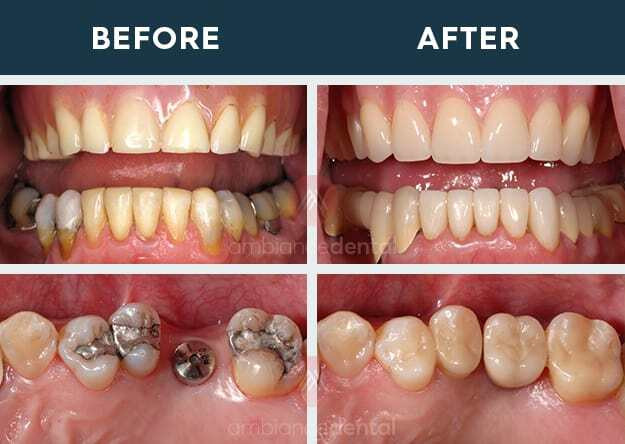 ambiance-dental-before-after-29