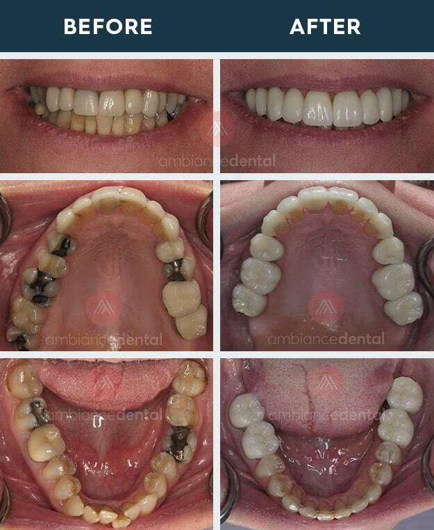 ambiance-dental-before-after-31