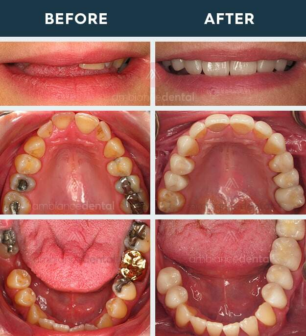 ambiance-dental-before-after-32
