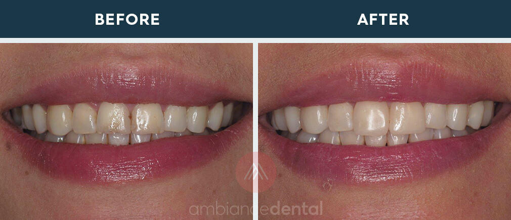 ambiance-dental-before-after-33