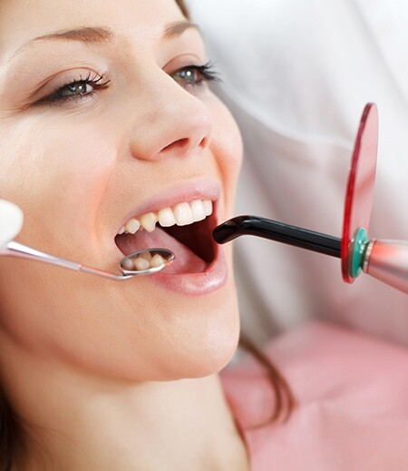 applying dental bonding in calgary