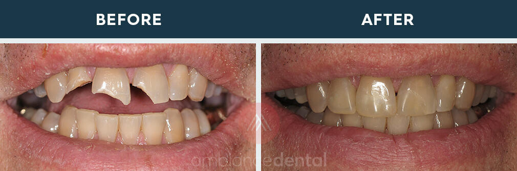 ambiance-dental-before-after-34