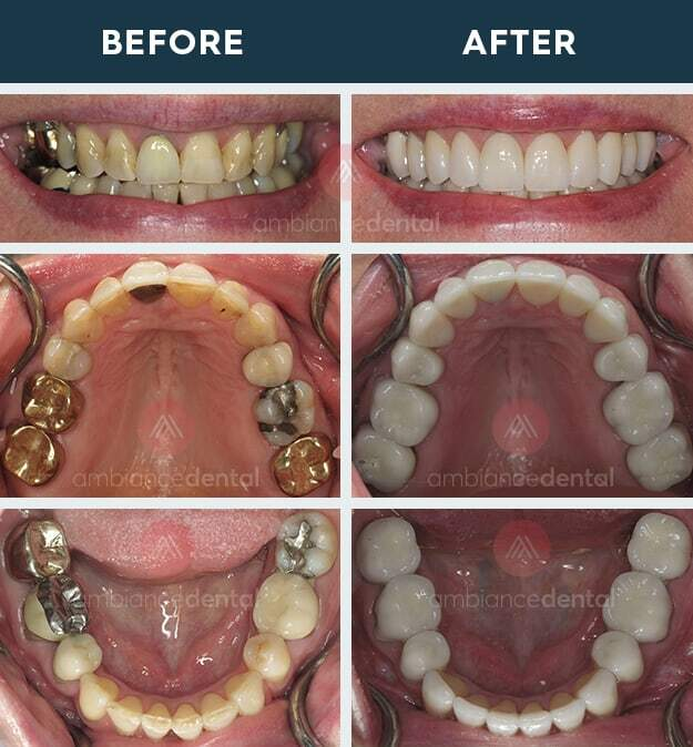 ambiance-dental-before-after-35