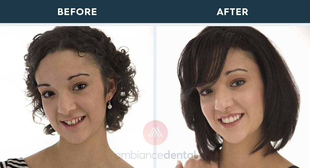 ambiance-dental-before-after-36